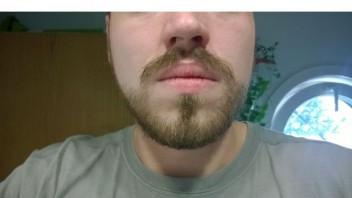 Bekommen mehr bart Mehr Bartwuchs: