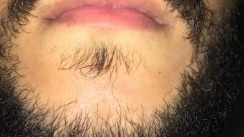 Weiter bart wächst nicht Bart wächst
