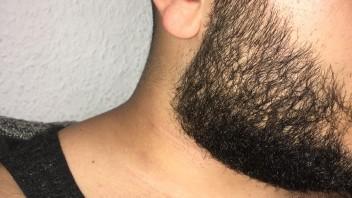 Weiter bart wächst nicht Bartwuchs anregen: