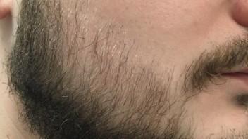 Erfahrungen bart minoxidil Minoxidil Bart