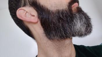 4 wochen nach bart Ungleichmäßiger Bartwuchs?