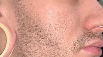 Wochen bart nach 4 Ungleichmäßiger Bartwuchs?
