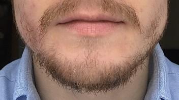 Wenig bartfrisuren bartwuchs mit Bartfrisuren Das